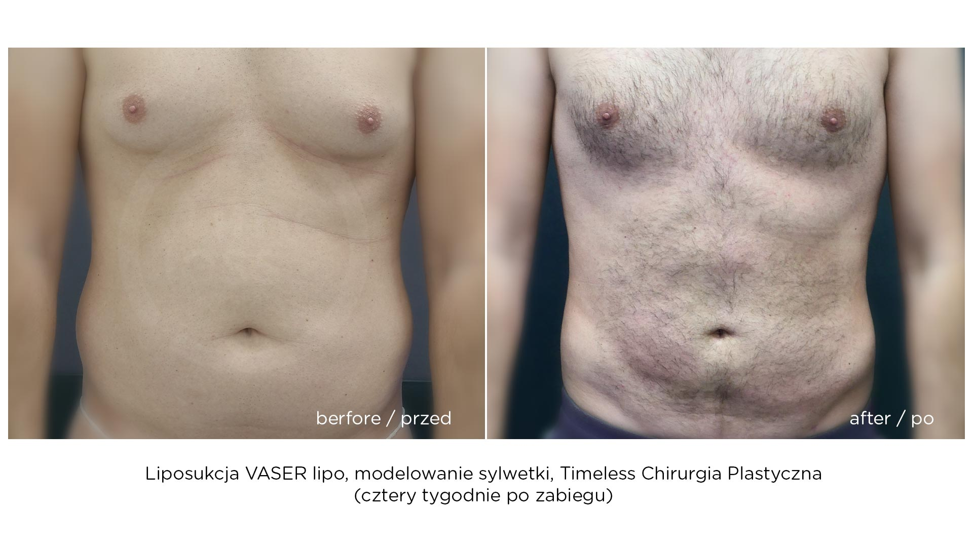 liposukcja-vaser-hd-2020-a1
