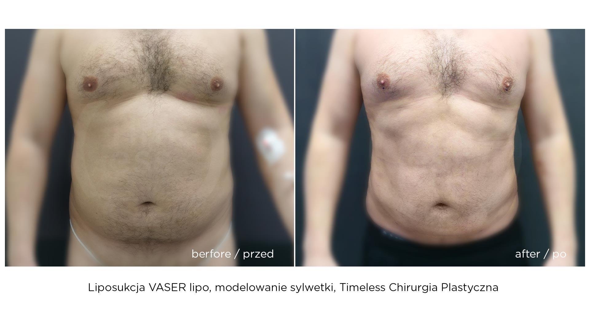 liposukcja-vaser-hd-2020-b1