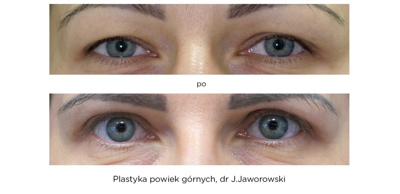 plastyka powiek górnych Warszawa